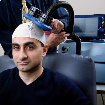 AVC et stimulation corticale