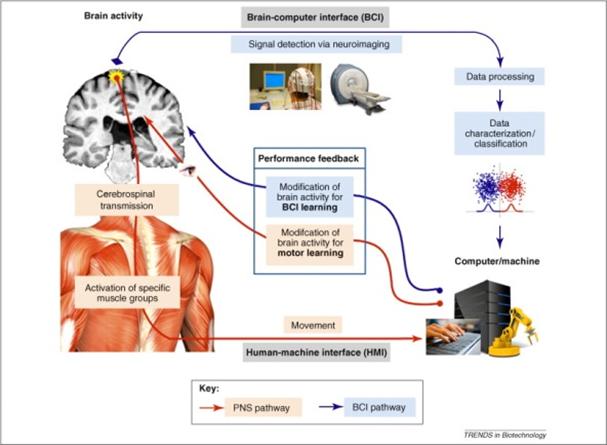 Une plasticité cérébrale sensorimotrice induite permet de contrôler la douleur fantôme