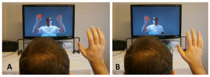 # Revue littérature : Thérapie miroir et réalité augmentée 3D